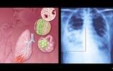 Virus RS và việc bảo vệ trẻ sinh non